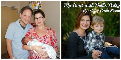Guest Post by Haley Webb Rivera: My Bout with Bell's Palsy