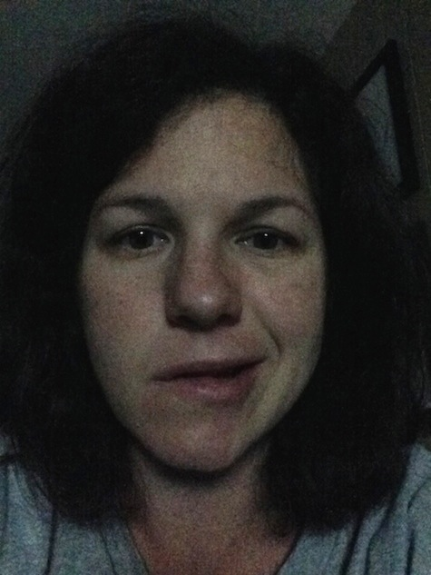 Bell's Palsy selfie--4 days after onset